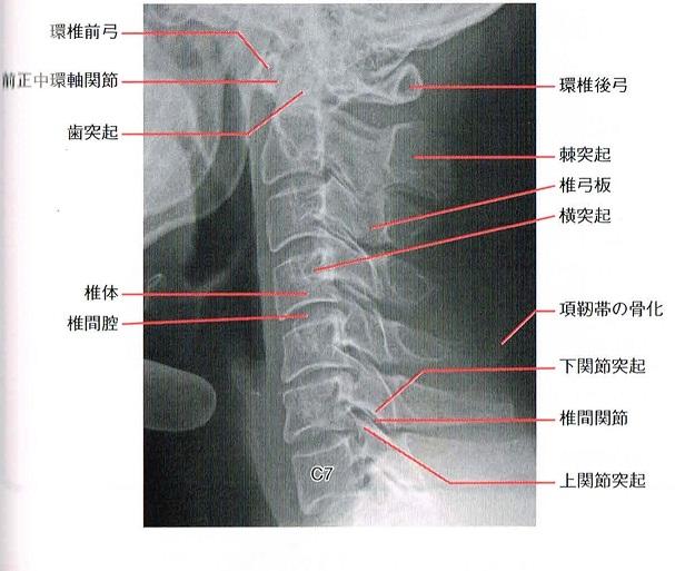 頚椎20140318_0000