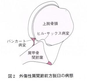 バンカート図